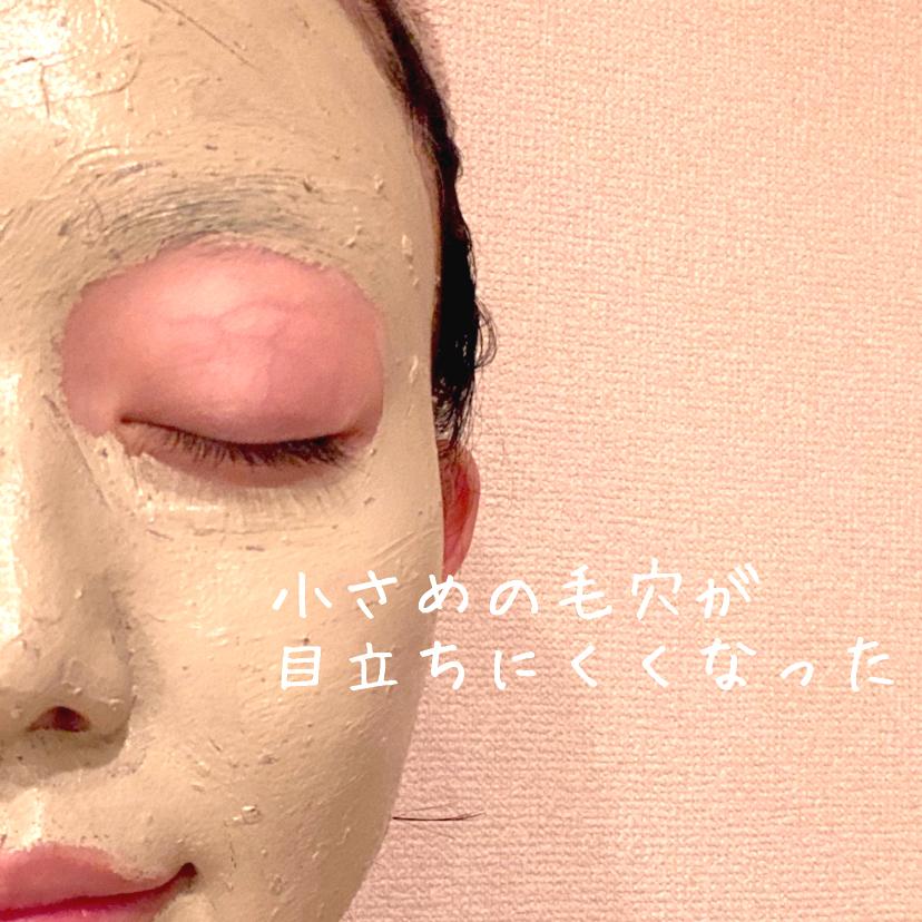 CICAカプセルマスク (10個入り)(洗い流すマスク・パック)を使ったクチコミ(3枚目)