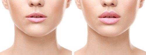 唇 分厚い 下 女性の唇って、厚いor薄いのどっちがいい?キスにまつわる本音8つ